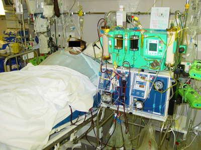rein artificiel dialyse